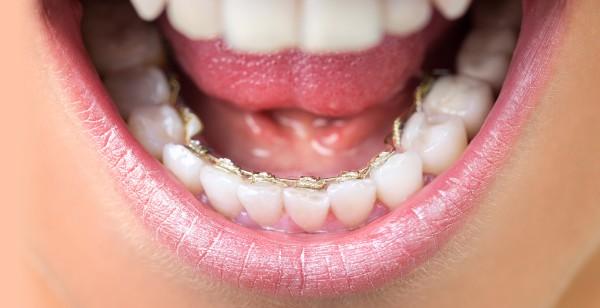 Linguale Zahnspange bei unseren Kieferorthopäde