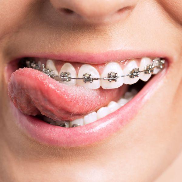 Während der Behandlung mittels fester Zahnspange von unseren Kieferorthopäden